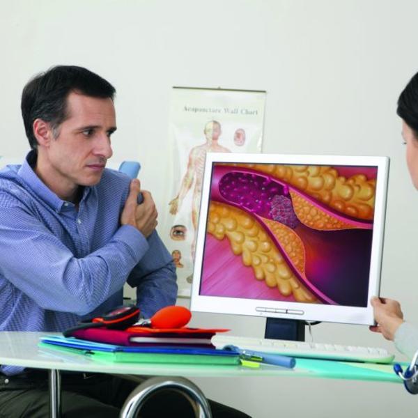 Novo otkriće šokiralo je i same lekare: OVO je uzrok svakog petog srčanog udara!